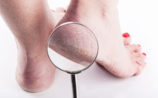 Comment enlever les callosités des pieds ?