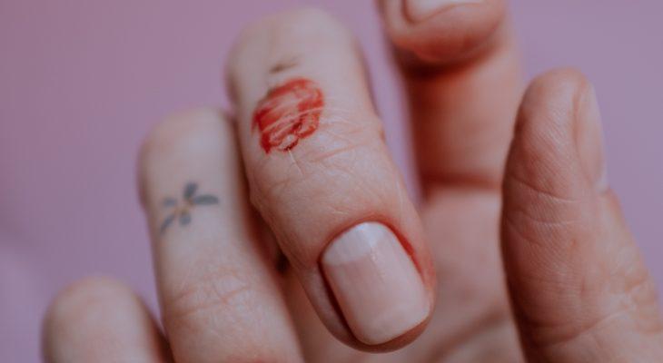 Mycose de l'ongle : causes et traitements médicaux